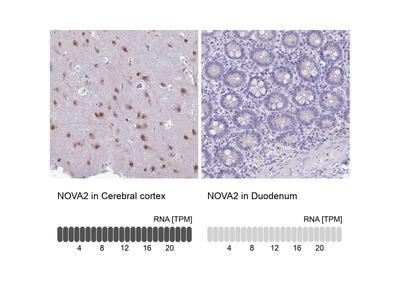 Anti-NOVA2 Antibody