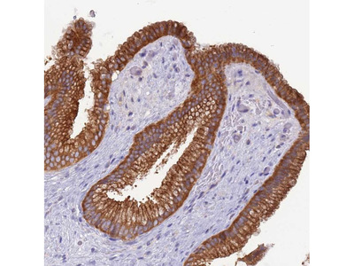 Anti-UQCRQ Antibody