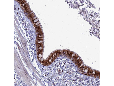 Anti-SLC25A37 Antibody