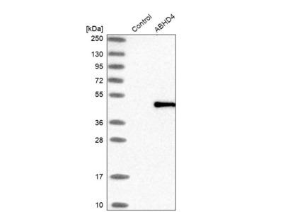Anti-ABHD4 Antibody