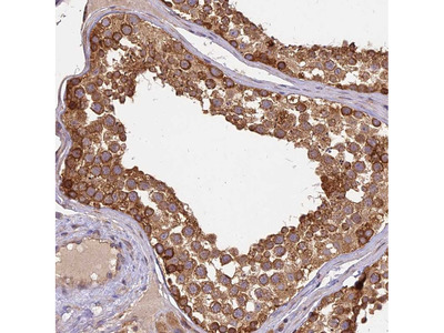 Anti-BRAP Antibody