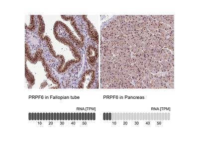 Anti-PRPF6 Antibody