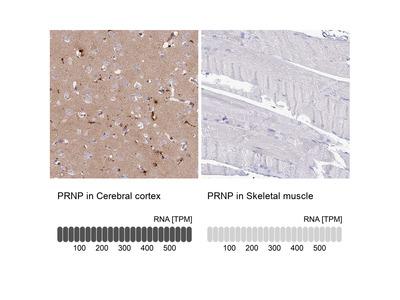 Anti-PRNP Antibody