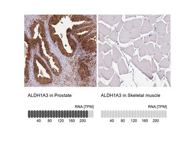 Anti-ALDH1A3 Antibody
