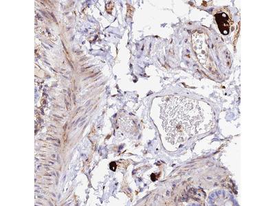 Anti-TRPV2 Antibody