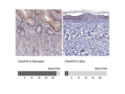 Anti-C4orf19 Antibody