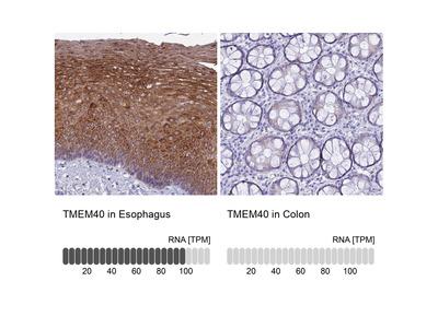 Anti-TMEM40 Antibody