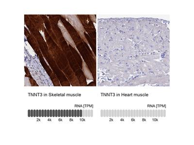 Anti-TNNT3 Antibody