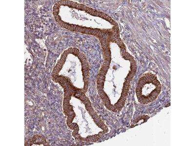 Anti-DCAF4 Antibody