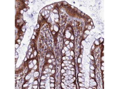 Anti-LNPEP Antibody