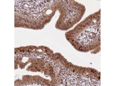 Anti-HNRNPLL Antibody