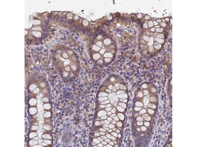 Anti-KRCC1 Antibody