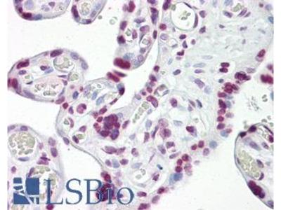 TP53 / p53 Polyclonal Antibody