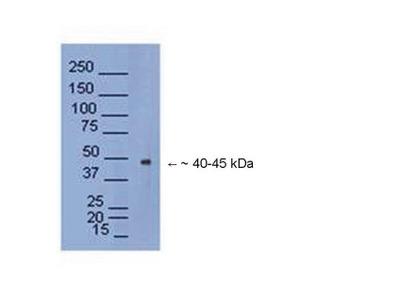 MATH2 / NEUROD6 Polyclonal Antibody
