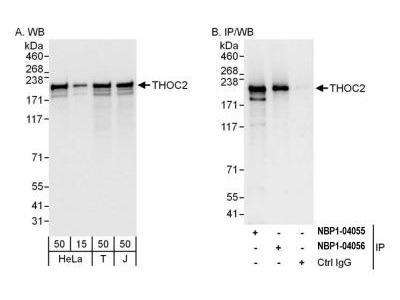 THOC2 Antibody