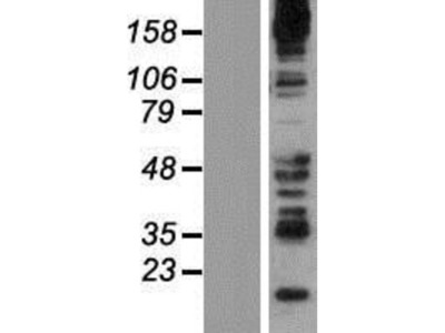 Synaptojanin 2 Overexpression Lysate