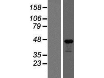 beta-Actin Overexpression Lysate