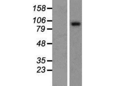 Sulfatase 1 Overexpression Lysate