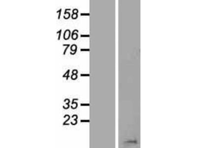 HIST1H2BN Overexpression Lysate