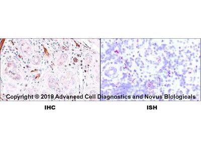 CD31 /PECAM-1 Antibody (JC /70A)