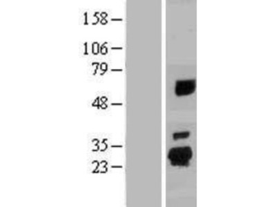 SPATA24 Overexpression Lysate