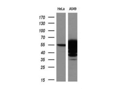 Mouse Monoclonal Aldehyde Dehydrogenase 3-A1 / ALDH3A1 Antibody