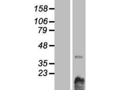 Choline Kinase beta Overexpression Lysate