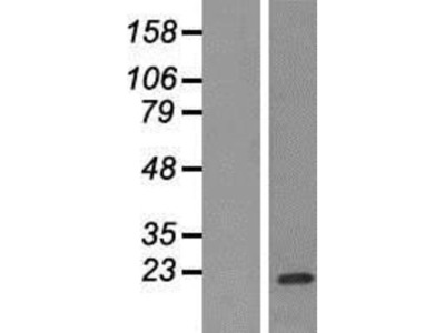 FCAR / CD89 Overexpression Lysate