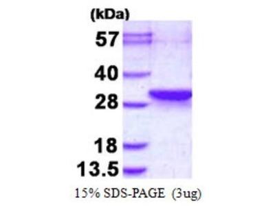 LDOC1L Protein