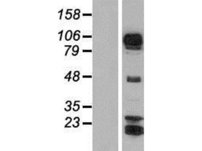 AFAP1L1 Overexpression Lysate