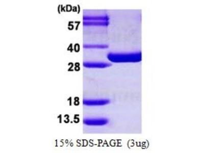 PGAM1 Recombinant Protein
