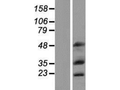 MOX1 Overexpression Lysate