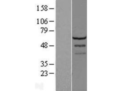 LSM14A Overexpression Lysate