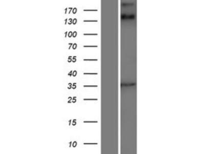 ANKRD15 Overexpression Lysate