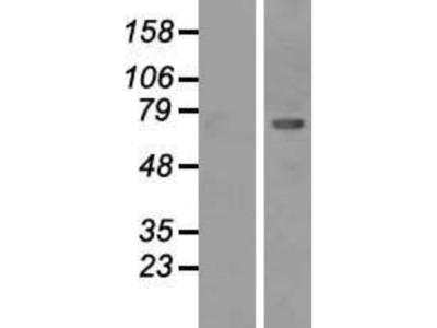 CaMKII beta Overexpression Lysate