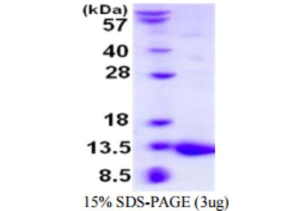S100A5 Recombinant Protein