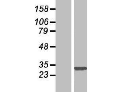 SLC35E2 Overexpression Lysate