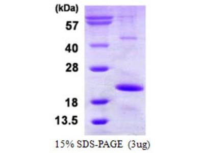Recombinant Human HspB9 Protein