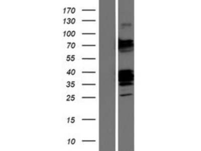 CLEC9a Overexpression Lysate