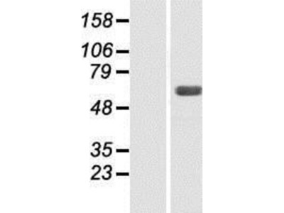 SNX4 Overexpression Lysate