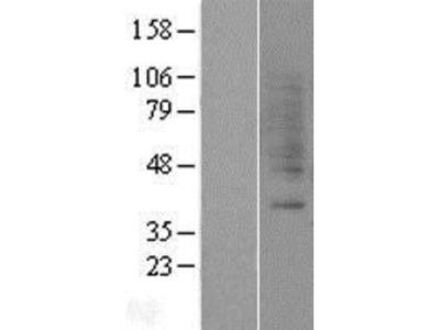 Gastrin-releasing Peptide R / GRPR Overexpression Lysate (Native)