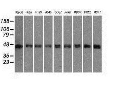 Mouse Monoclonal DAP Kinase 2 Antibody