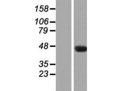 NAT16 Overexpression Lysate