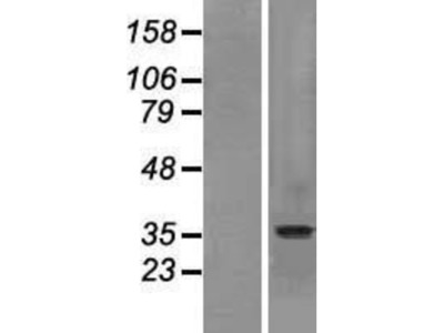 SLC10A2 Overexpression Lysate