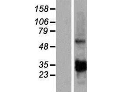 CCDC107 Overexpression Lysate