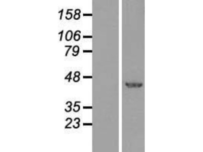 XBP1 Overexpression Lysate