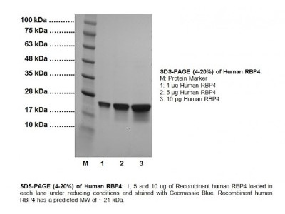 Recombinant Human RBP4 / Retinol-Binding Protein 4 Protein