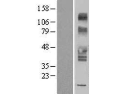 SLC43A3 Overexpression Lysate