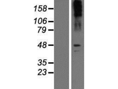 SLC6A2/NET/Noradrenaline transporter Overexpression Lysate