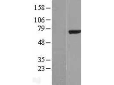 Testican 2/SPOCK2 Overexpression Lysate